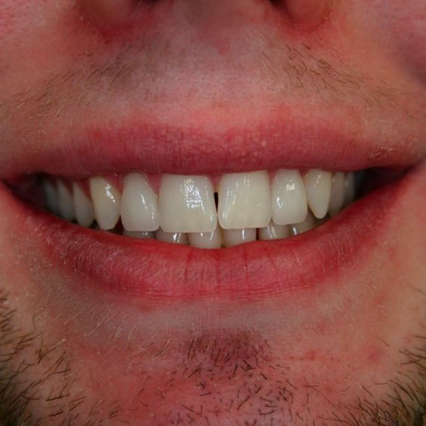After cosmetic dental veneers in Edinburgh EH3