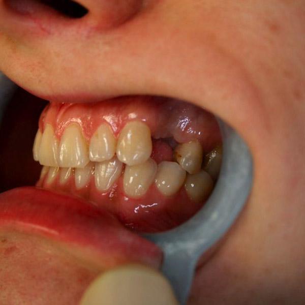 Before dental implant treatment in Edinburgh EH3
